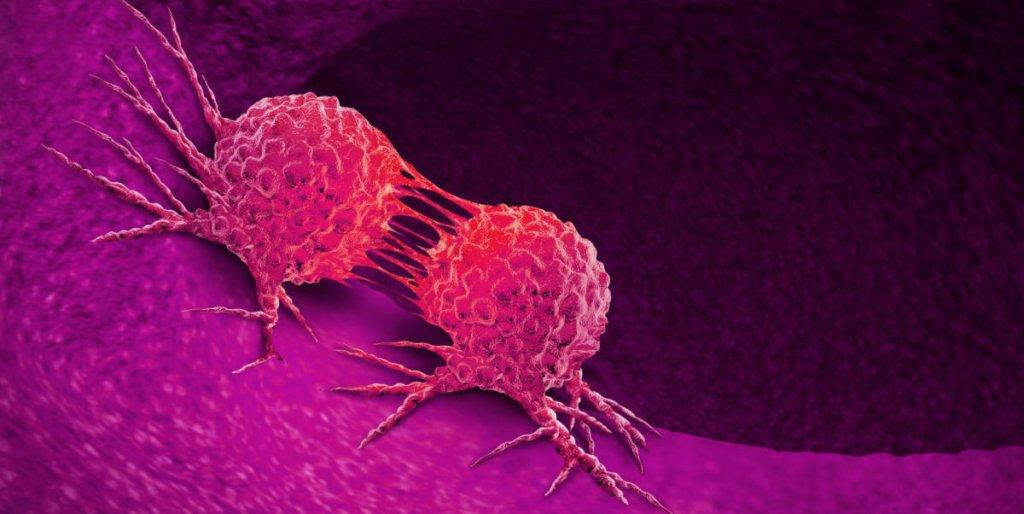 El riesgo de la privación de sueño en el desarrollo del cáncer